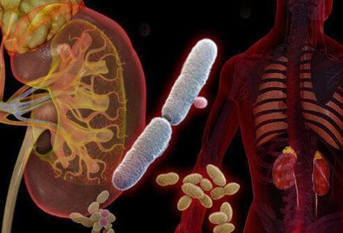 یک توصیه ساده برای پیشگیری از عفونت مجاری ادراری