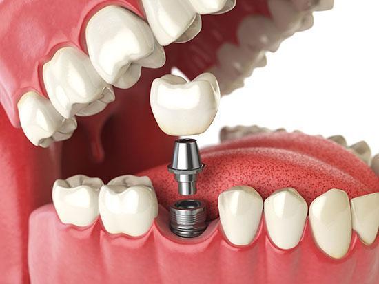 قیمت ایمپلنت دندان سال 98