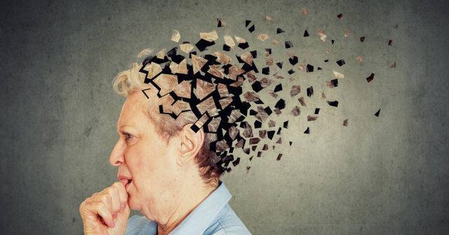 درمان آلزایمر در سطح آزمایشگاهی
