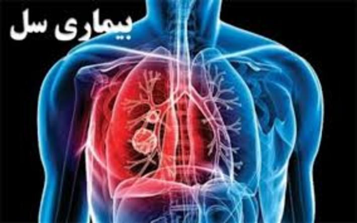 علائم بیماری سل، علل و روش های درمان آن علائم بیماری سل، علل و روش های درمان آن